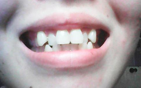 Сериала: снова можно ли исправить очень кривые зубы растения грунты