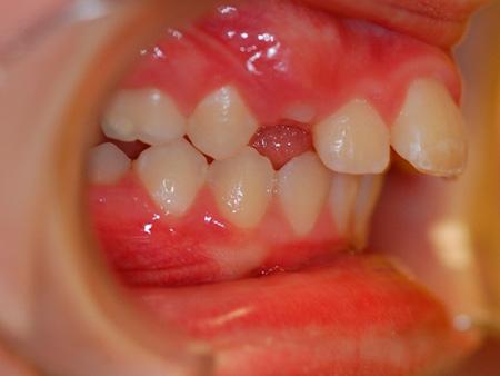 Проблема аномальной протрузии и ретрузии зубов