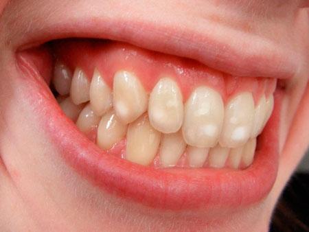 Разновидности и формы гипоплазии зубной эмали
