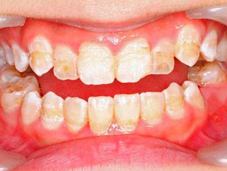 сильная гипоплазия зубной эмали