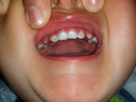ребенок с гипоплазией зубов