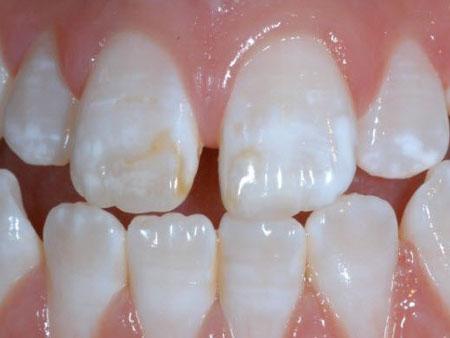 пятна на зубной эмали