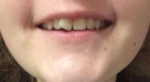 кривой передний зуб