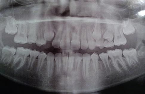 снимок зубов девочки 9 лет