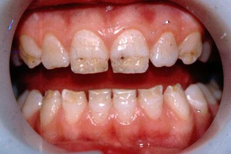 зубы Фурнье