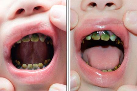 тетрациклиновые зубы у ребенка