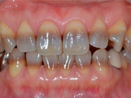 тетрациклиновые зубы у взрослого