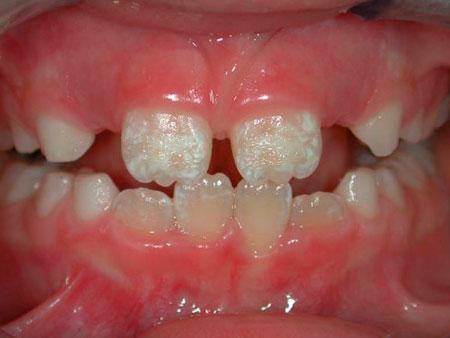 гипоплазия детских зубов