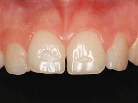 горизонтальные бороздки на зубах