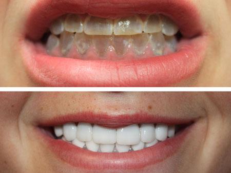 накладки на зубы с дисплазией