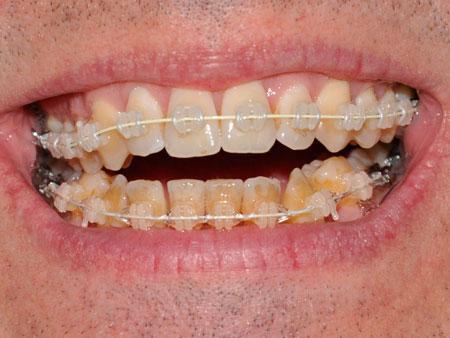 Отбеливание зубов во время и после брекетов
