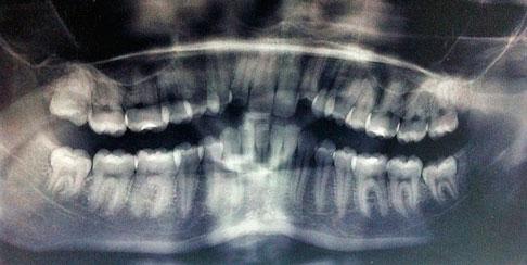 снимок неровных зубов
