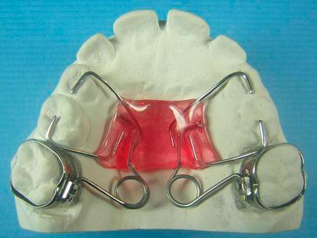 Функции аппарата Pendulum в ортодонтии