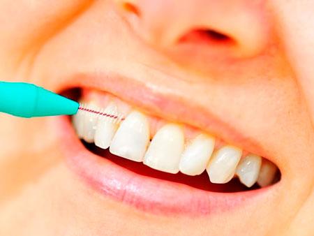 Функции ершиков для чистки зубов