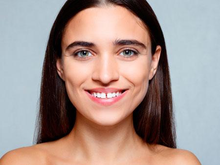 Нужно ли убирать диастему между зубами?