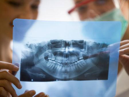Роль панорамного снимка зубов в стоматологии