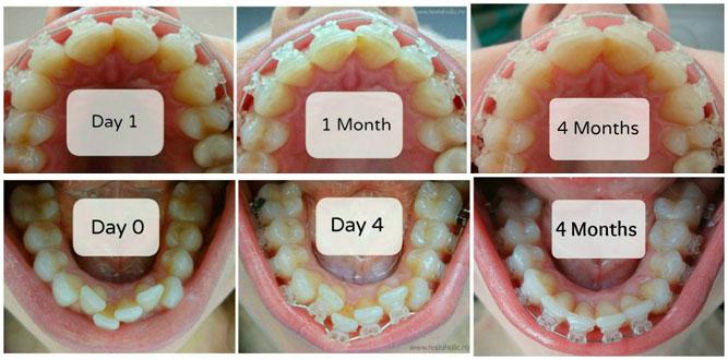до и после 4 месяцев