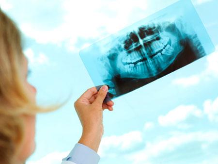 готовый снимок зубов