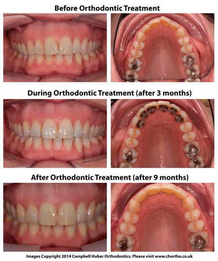 коррекция одного зуба