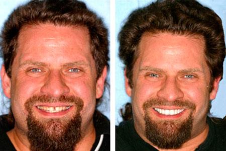 мужчина до и после диастемы