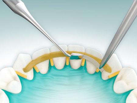 Функции шинирования зубов в стоматологии