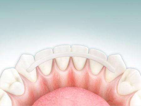 шинирование фронтальных зубов