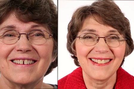 устранения щели между зубами
