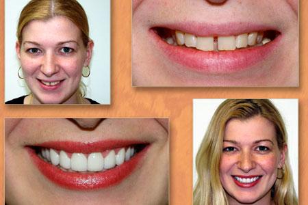закрытие расщелины зубов винирами