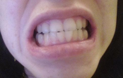 большие верхние зубы