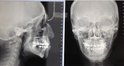 рентген снимки пациента