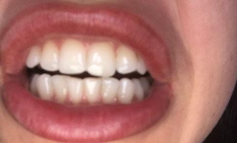 неровные зубы у пациентки